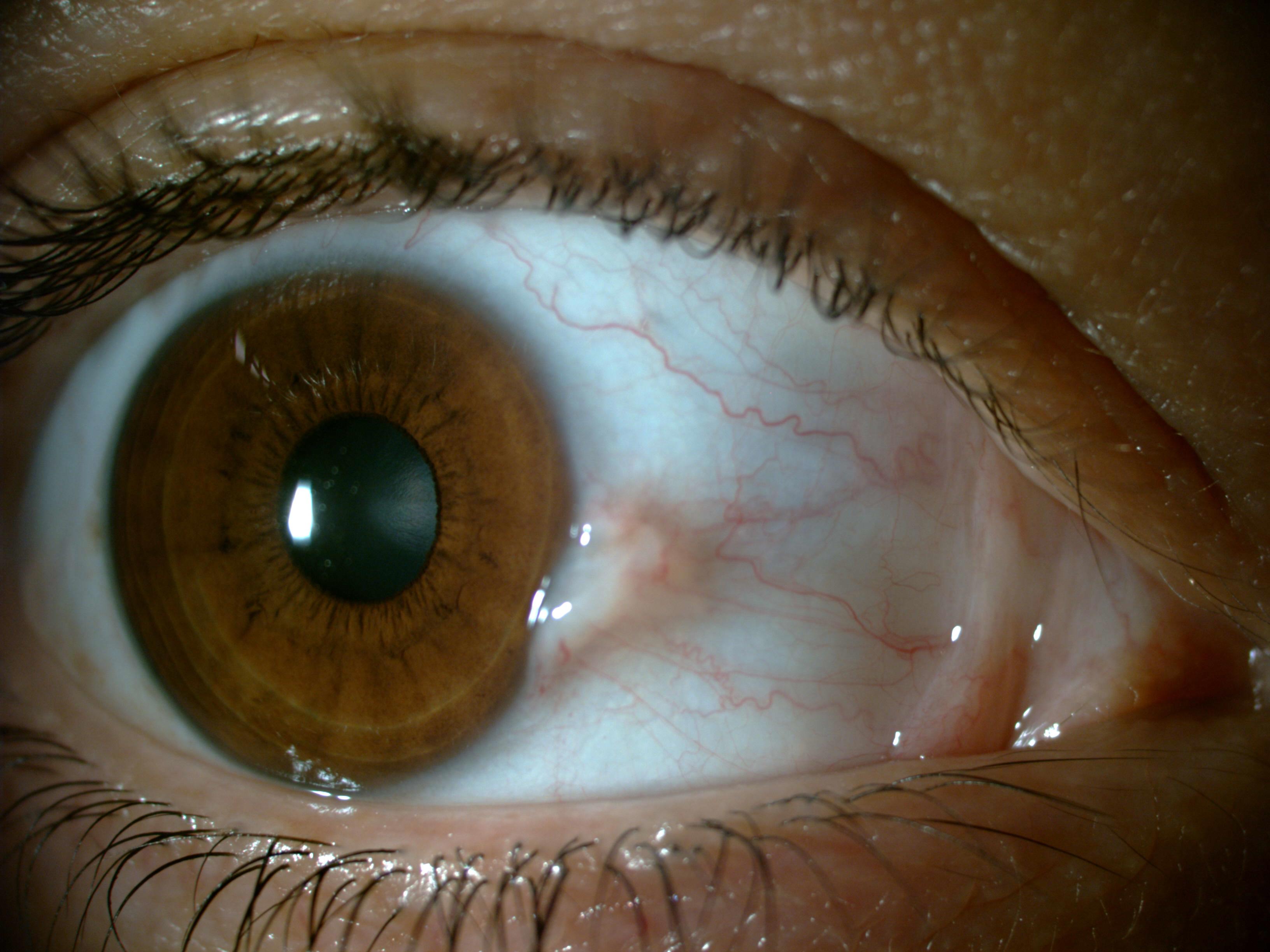Göz Kanlanmasına Ne İyi Gelir: Göz Kanlanması İçin Doğal Çözümler
